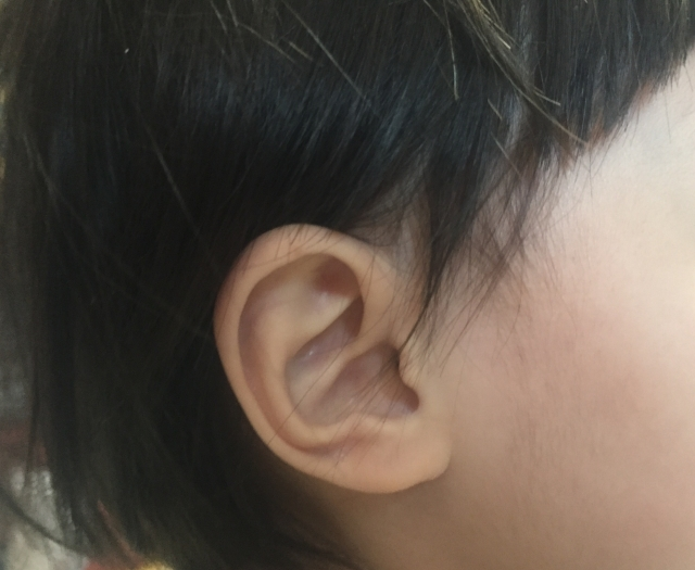 滲出性中耳炎とは